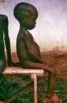 Photo of an African girl with thin limbs and a distended abdomen.