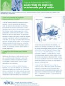 La pérdida de audición inducida por el ruido