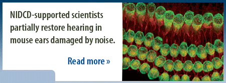 NIDCD-supported scientists partially restore hearing in mouse ears damaged by noise.