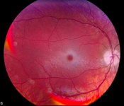 Fundus photograph showing retina changes associated with Tay-Sachs disease.