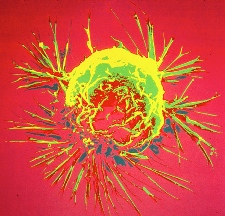 Two Drugs and One Target: Women with HER2+ Breast Cancer