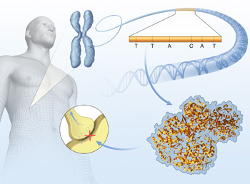 A journal article illustration depicting genetic factors for bone pain