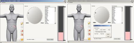 Image from GIPP device showing illustrated torso and pain pointer.