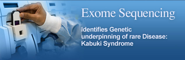 Exome Sequencing: Identifies Genetic underpinning of rare Disease: Kabuki Syndrome