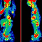 PET scans of  lymph nodes with lymphoma in the groin and armpit (red areas).