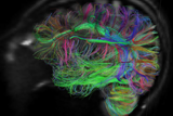 Mapping the Circuitry of the Brain