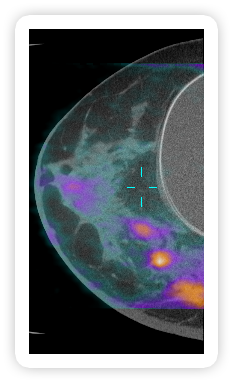 Figure 2: Breast image generated with dbPET/CT.            Orange and purple represent areas of increased            metabolic activity.