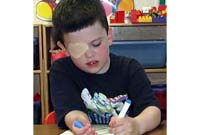 A child with amblyopia wearing an eye patch.