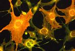 Photo of stem cells
