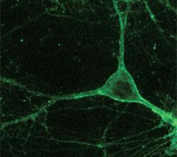 New Tools to Correct Brain Activity