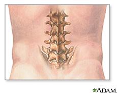 Illustration of the lumbar vertebrae