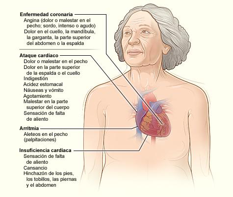 La ilustración muestra los principales signos y síntomas de la enfermedad coronaria.