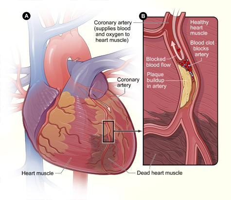 Figure A is an overview of a heart and coronary artery showing damage (dead heart muscle) caused by a heart attack. Figure B is a cross-section of the coronary artery with plaque buildup and a blood clot resulting from plaque rupture.