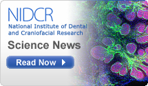 NIDCR: National Institute of Dental and Craniofacial Research-Science News