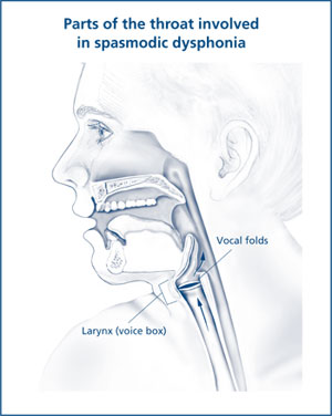Illustration of the parts of the throat involved in spasmodic dysphonia.