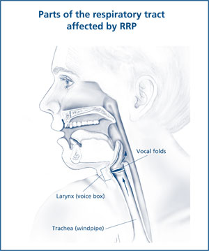 Illustration of the respiratory tract affected by RRP.