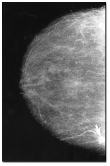 Mammogram of a breast with cancer ( a small, white lump about 3 millimeters in size) indicated by white arrow