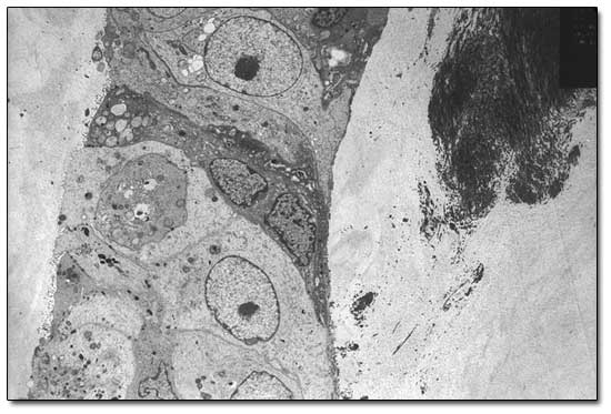 Breast cancer cells under the microscope - the cancerous cells are irregular in size and shape