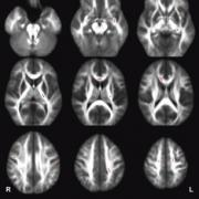 Series of MRI Scans of the Brain