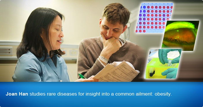 Joan Han studies rare diseases for insight into a common ailment - obesity.