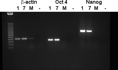 WA01, WA07 PCR for beta-actin, Oct-4, and Nanog mRNA