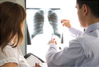 Medical professionals looking at an x-ray image of lungs on a lightbox