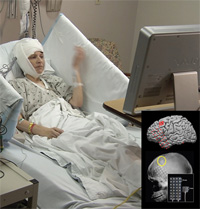 Brain study participant (left) and micro-electrocorticography imagery (right)