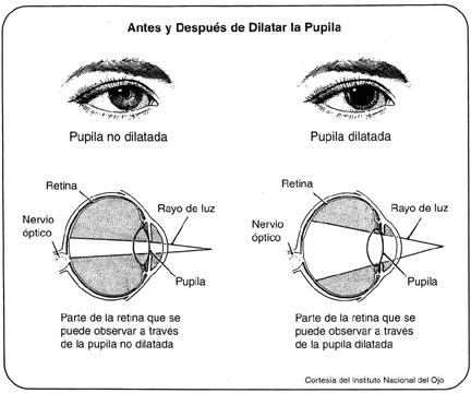 Diagrama del Ojo Antes y Después del Examen con Dilatación de Púpila