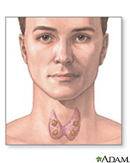 Illustration of the thyroid showing the parathyroid glands