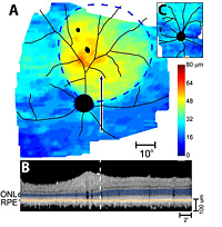 RPGR gene therapy preserves retinal thickness.
