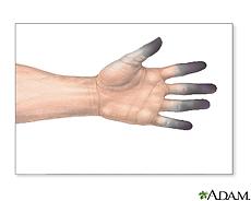 Ilustración de quemadura de los dedos por congelación