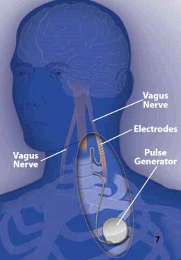 Image illustrating vagus nerve stimulation.