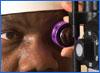 screen from a diabetic eye disease video