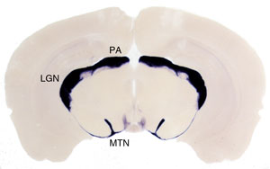 Coronal section through the brain of a Brn3aCKOAP/+; Pax6 :Cre mouse.  Retinorecipient areas receiving projections from RGCs expressing Brn3a are labeled in purple, and include the Medial Terminal Nucleus (MTN) of the Accessory Optic System, the Lateral Geniculate Complex (LGN) and the Pretectal Area (PA).