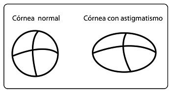 Cornea both Normal and Astigmatismo