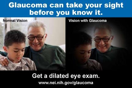 Glaucoma E-card
