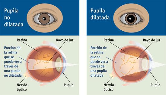 dilatación de pupilas