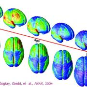 The Growth of the Teenage Brain From Age Four to Twenty-One
