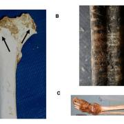 Animal scavenging marks on bones from dead bodies