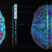 This picture is showing us an inside view of the brain from the top down. It compares healthy brain activity (left side, with all the red areas) with diminished brain activity in a drug user (right side).
