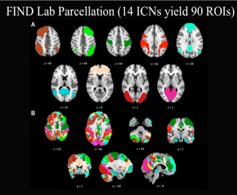 PET scans - FIND Lab Parcellation